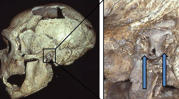 """Image 2 for Neanderthals got """"surfer's ear"""" too, study says"""