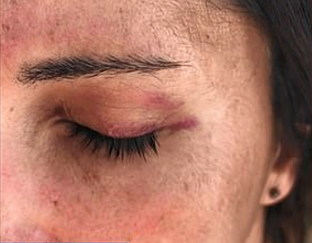 Image 2 for Shark slaps surfer and leaves her with a black eye